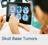 Skull Base Tumors | Advanced ENT Services